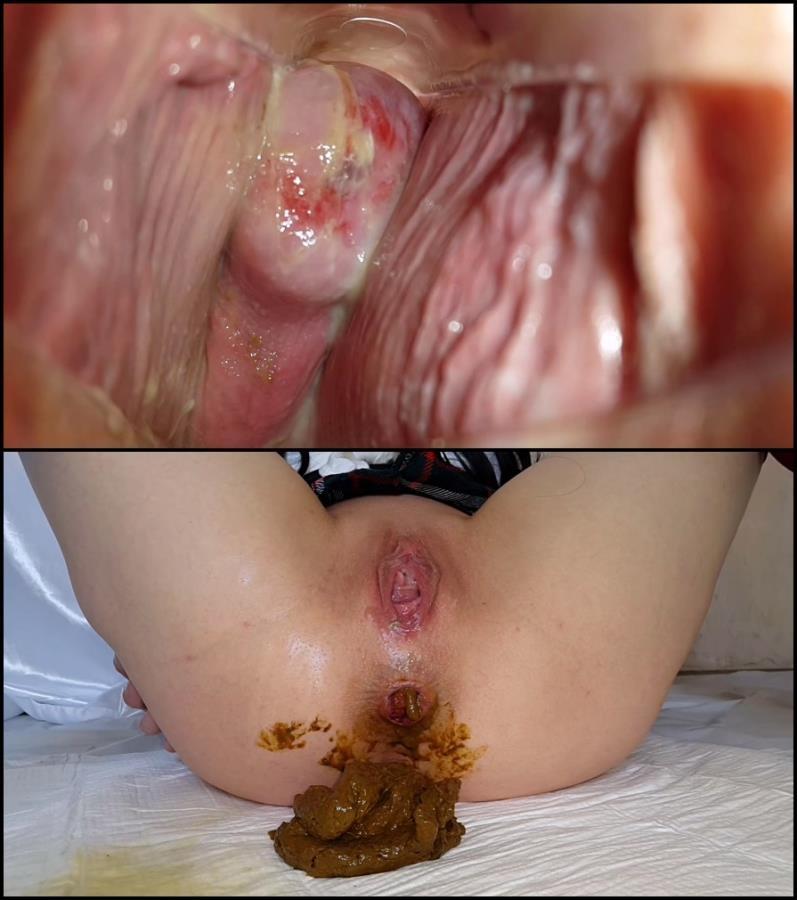 Lesbian feces pussy pics